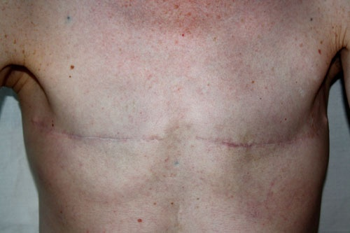 Seksa Disforia kaj Kirurgia Misuzo